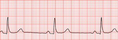 bradycardia low heart rate